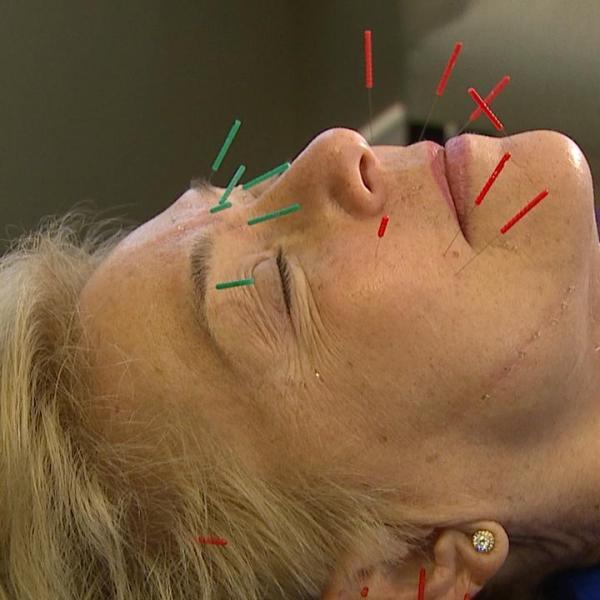 facial-acupuncture-web_377286