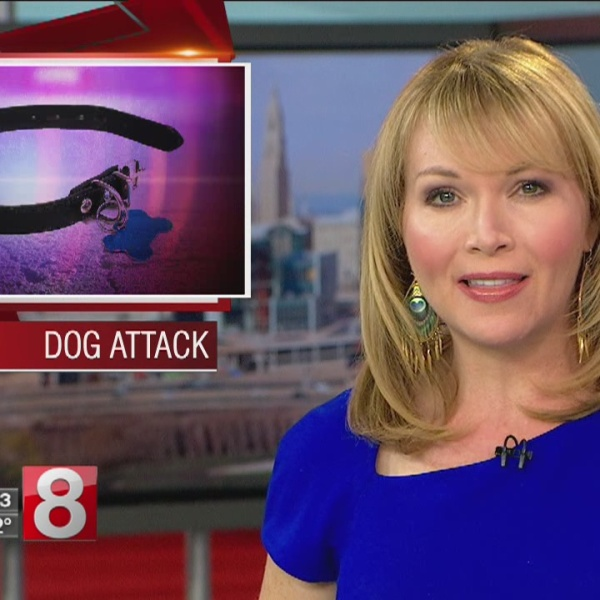 Dog attacks 79 year-old man multiple times