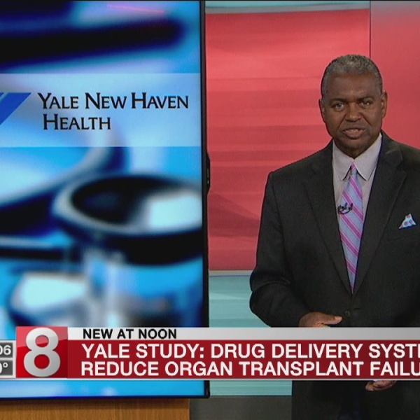 Yale develops drug delivery system to reduce organ transplant complications