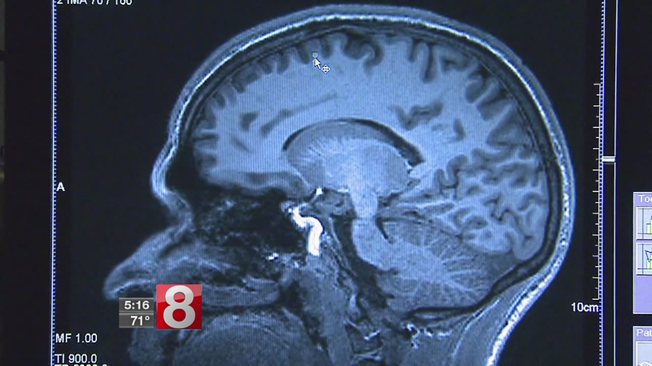 New study shows that keeping your brain healthy could start with your heart