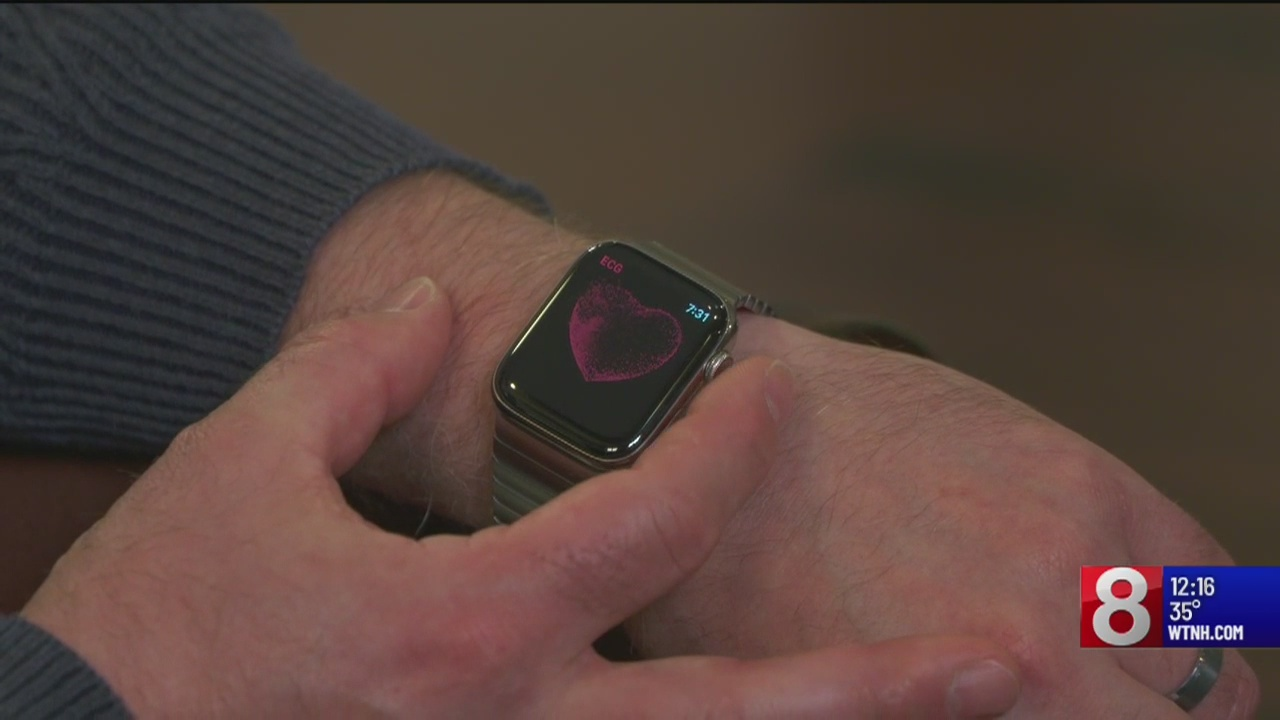 An Apple Watch told a 46-year-old man he had an irregular heartbeat. It was right.